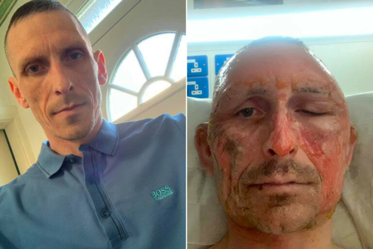 Man torches head after hand sanitizer goes up in flames