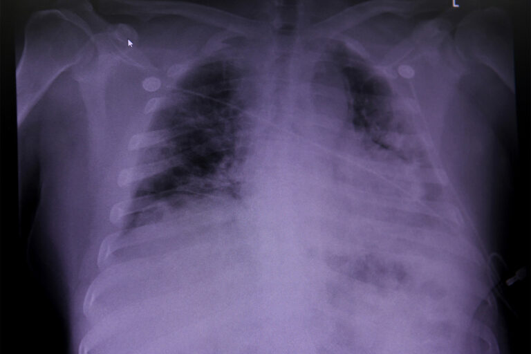 Lung damage found in COVID dead may shed light on 'long COVID': study